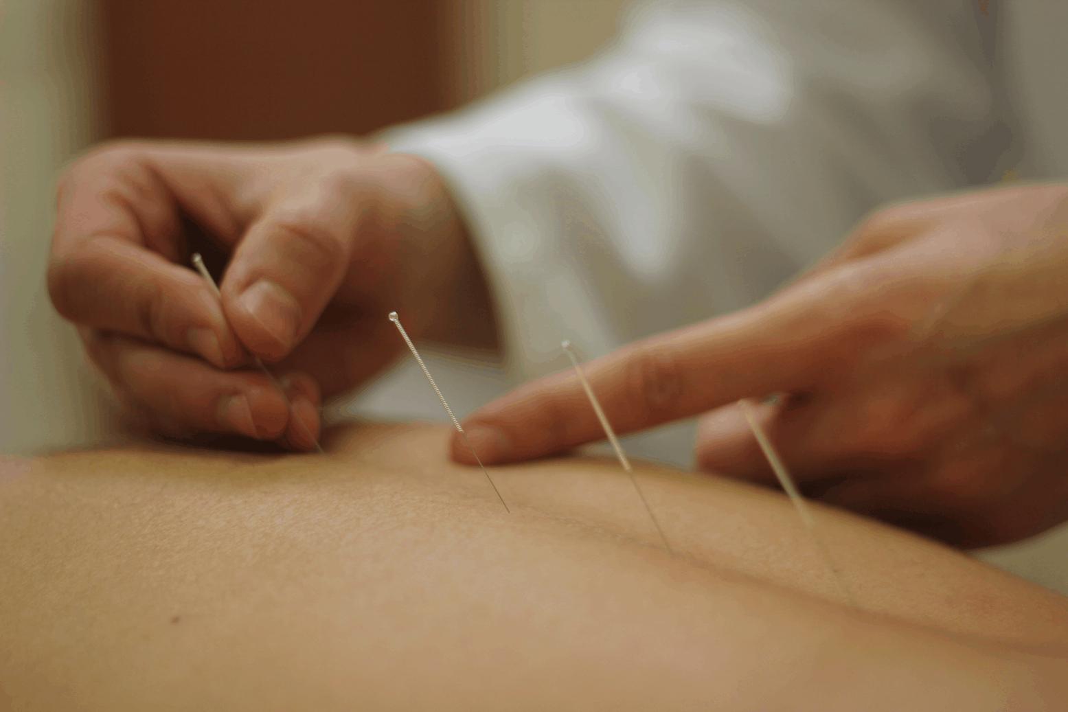 La dott.ssa Francese pratica agopuntura a Rimini. Fissa un appuntamento