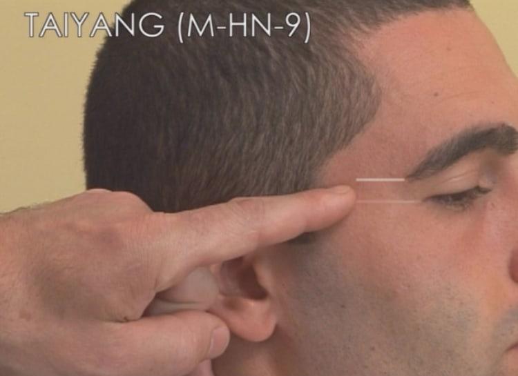 Taiyang- agopuntura Mal di testa